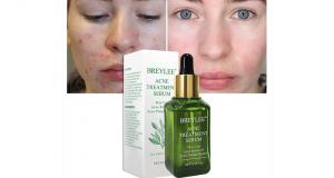 Échantillons gratuits du Sérum de traitement contre l'acné